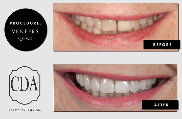 Teeth Cleaning or Teeth Whitening Dentistry in Houston TX
