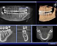 Northern Kentucky Dental Care