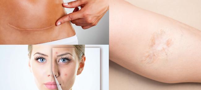 Scar Treatment - University Park Dermatology & Medical Spa