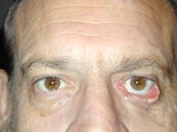 Ophthalmic Facial Plastic Surgery Institute, Sam Goldberger MD