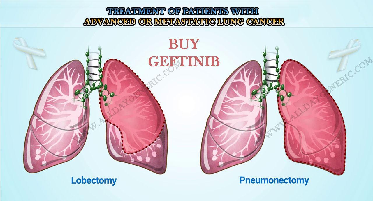 Buy Gefticip 250 mg