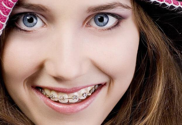 Best Braces treatment for Adults in Puyallup