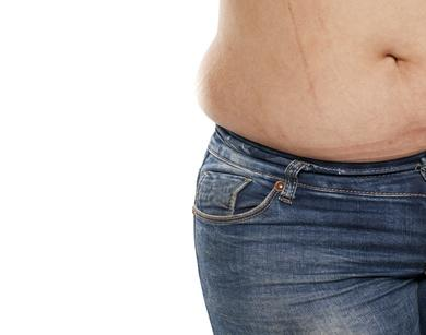 Stretch Mark Scars Services in Colleyville