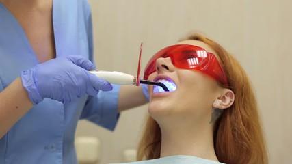 Get Laser Teeth Whitening San Antonio Service