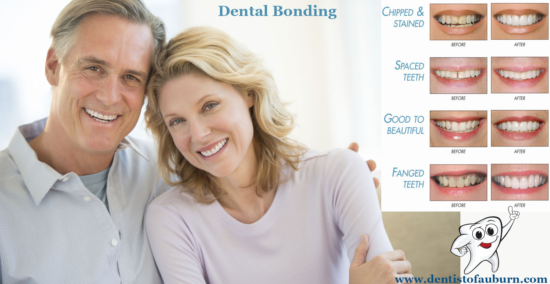 Tooth Bonding Auburn Wa | Affordable cosmetic dentistry auburn