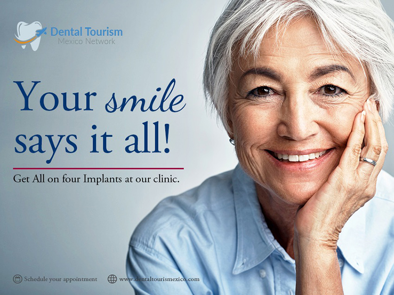 Best dental clinic for all on Four treatment in Ajijic.