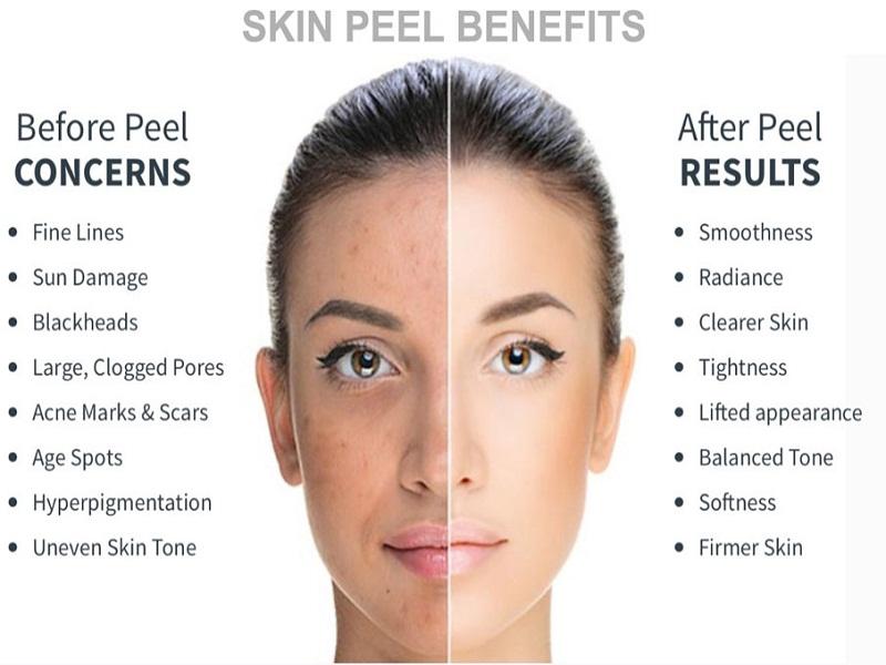 What is A Chemical Peel? | FreshSkin