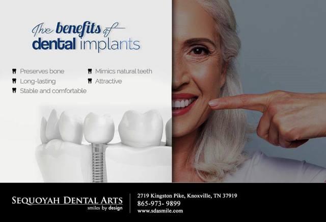Certified Dental Implants Knoxville- Dr. Pablo Foncea