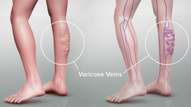 Laser Leg Vein Removal Treatments - Chicago, IL