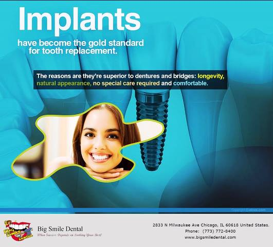 Most Popular Dental Implants Advanced Treatments By Dr. Theodore M. Siegel