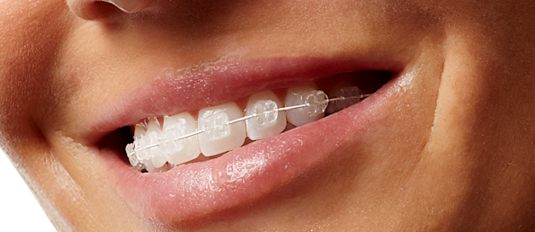 Get premium quality Clear Braces in Chicago