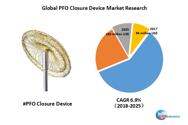 Global PFO Closure Device market will reach 160 million US$ by the end of 2025