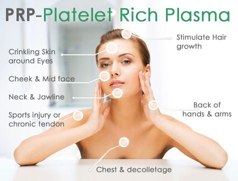 Platelet Rich Plasma in NYC