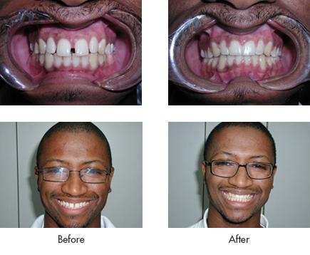 Find Dental Braces Chicago - Dr. Theodore M. Siegel - Local Dentist