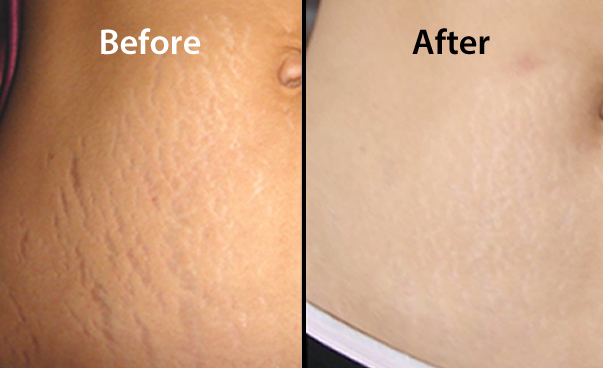 Get Rid Of Stretch Marks from the Best Laser Clinic