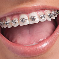 Best Braces in Colorado Springs