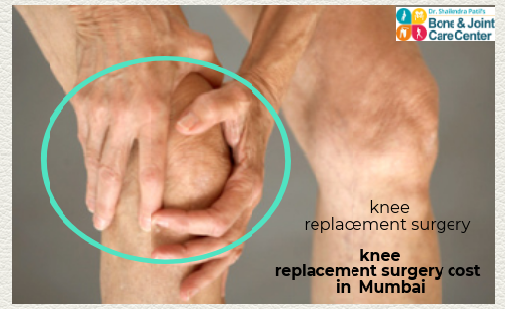 Knee Surgery Cost In Navi Mumbai Bone And Joint Care Clinic