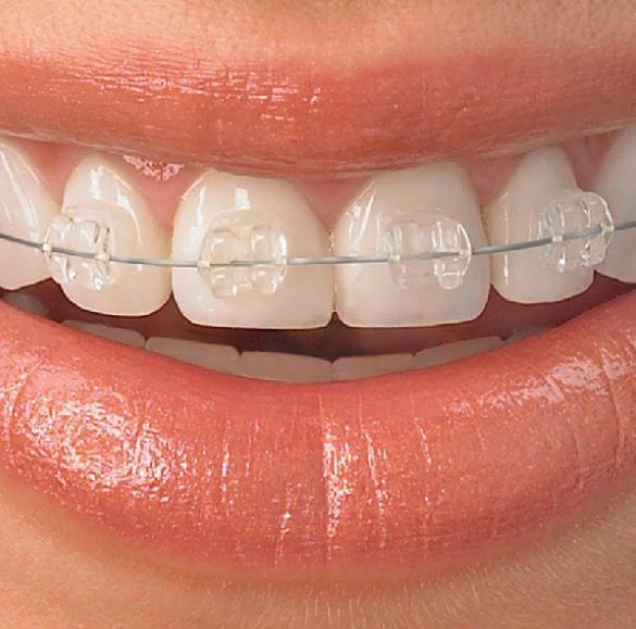 Get a beautiful smile with Clear Braces in Chicago