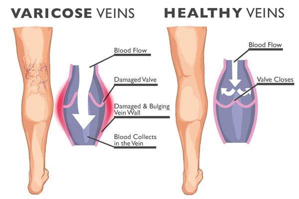 Best Varicose & spider vein removal in plano, TX