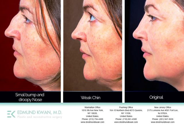 Dr. Edmund Kwan Affordable Asian Nose Job in NYC