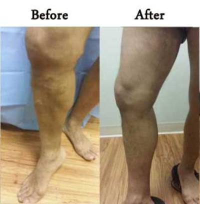 how to get rid of varicose veins | Sclerotherapy Chicago