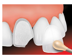 Affordable Dental Services | Dental Implants in Auburn