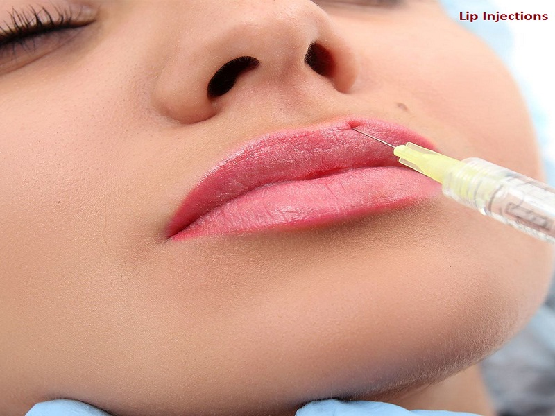 Some Important Things about Lips Injections in Highland Park | FreshSkin