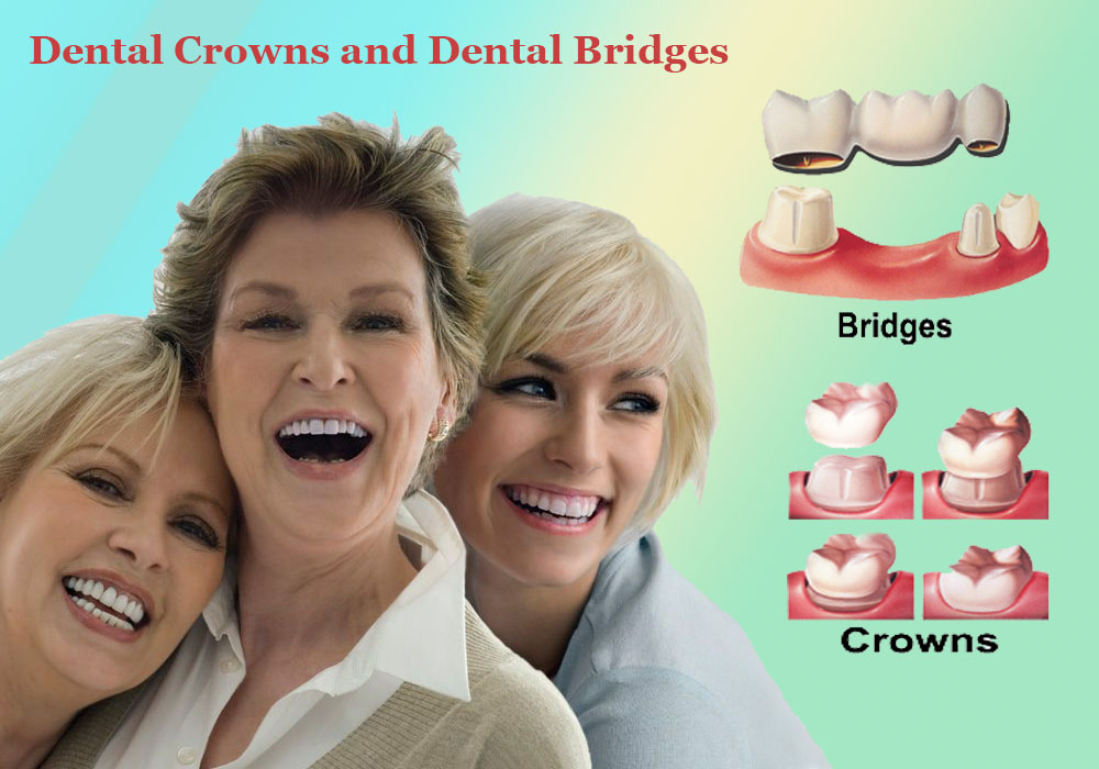 Dental crowns and dental bridges | Tooth replacement dentistry Auburn Wa
