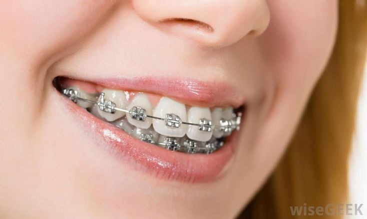 Need Affordable Braces?