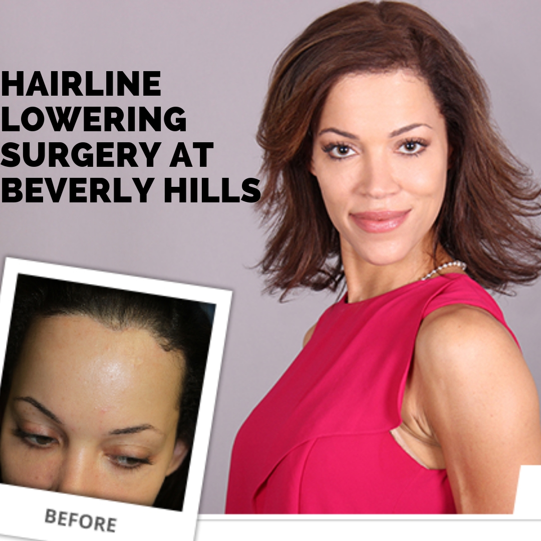 Hairline Lowering surgery at Beverly Hills.