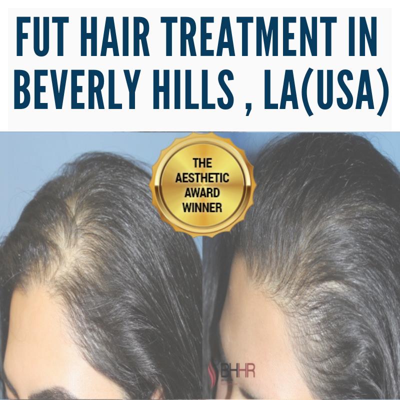 Best FUE Hair Transplant Surgery in Los Angeles