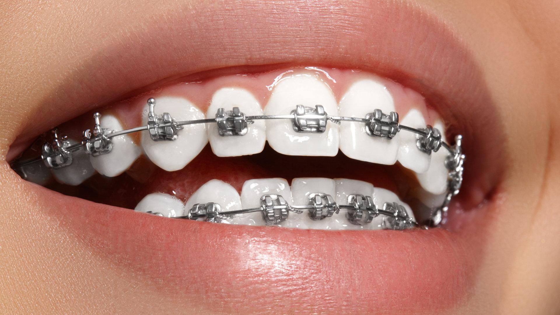 Best Orthodontist in Colorado Springs