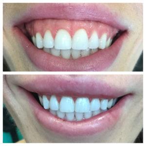 Best lip repositioning specialist in lewisville-tx