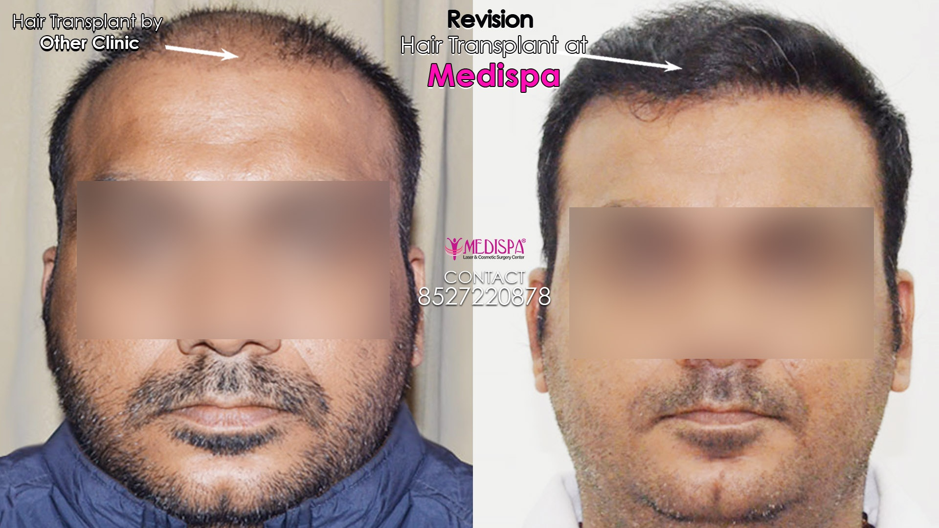 Hair Transplant in Bikaner | 8527220878