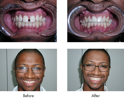 Most Popular Dental Braces Advanced Treatments By Dr. Theodore M. Siegel