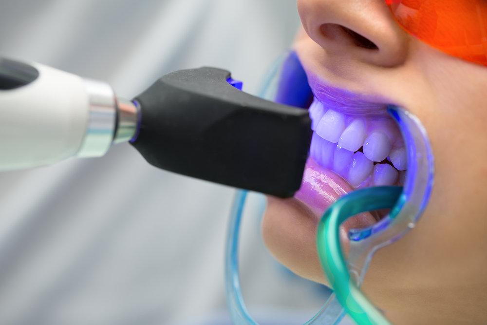 Choose Experienced Stoneoak Dentist in San Antonio on call (210) 281-5115