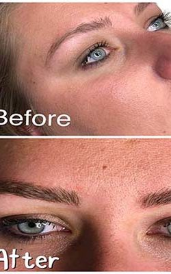 Best Eyebrow Microblading in Florida