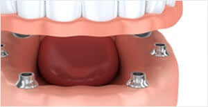 Dental Implants in Brunswick Maine | middlebaydental.com