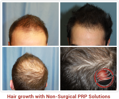 3D Micropigmentation of eyebrows in beverly hills for female suffering from absence of eyebrows.