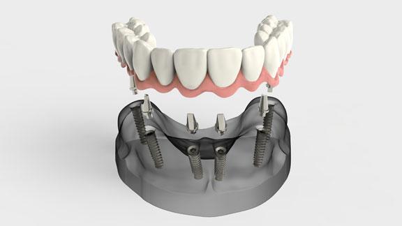 Dental Implants in Lewiston ME | androscoggindentalgroup.com