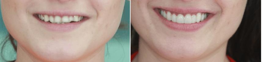 A segunda imagem apresenta uma imagem mais distante do rosto, a fim de mostrar o quanto mais feliz e satisfeito o paciente sente-se com seu novo sorriso