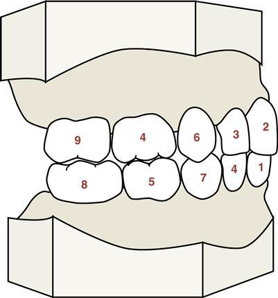 Sequência de erupção dos dentes de leite