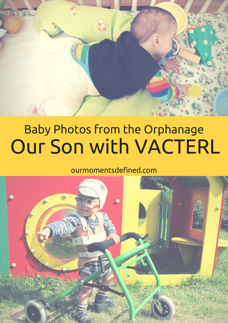 On Our Moments Defined, one of the boys has VACTERL Association. Recently, copies of his baby photos were received. These photos depict much of his medical journey.